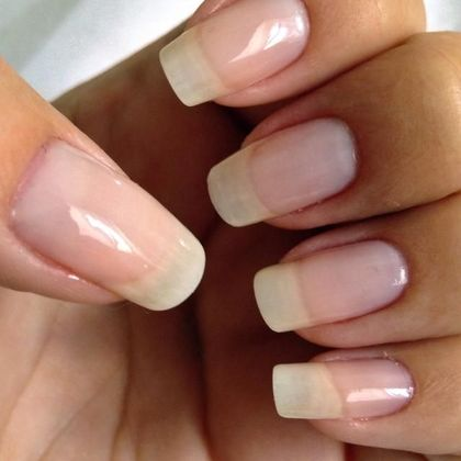 5 best home remedies for nail growth